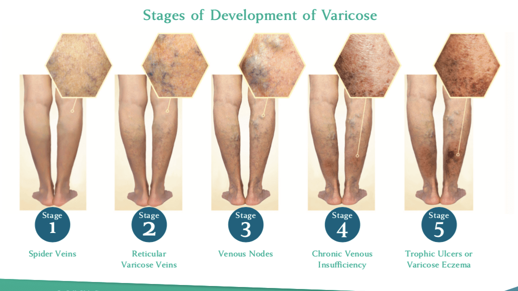 stages of venous disease