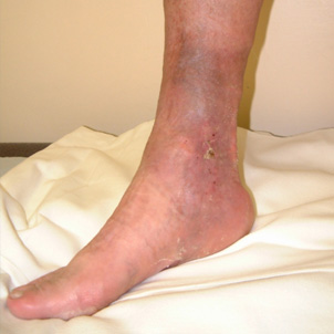 photo of venous leg ulcers