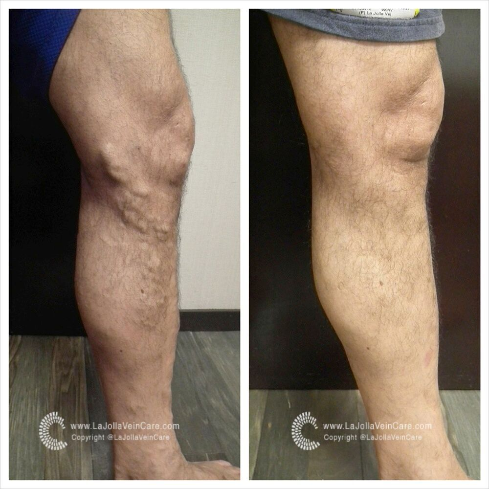 Ultrasound Findings of Normal vs. Diseased Great Saphenous Vein