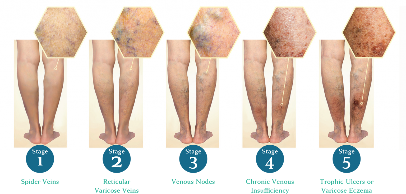 image showing Stages of Development of Varicose