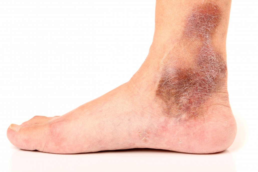 Darkening of skin, and itchiness are a sign of chronic venous insufficiency or venous reflux disease