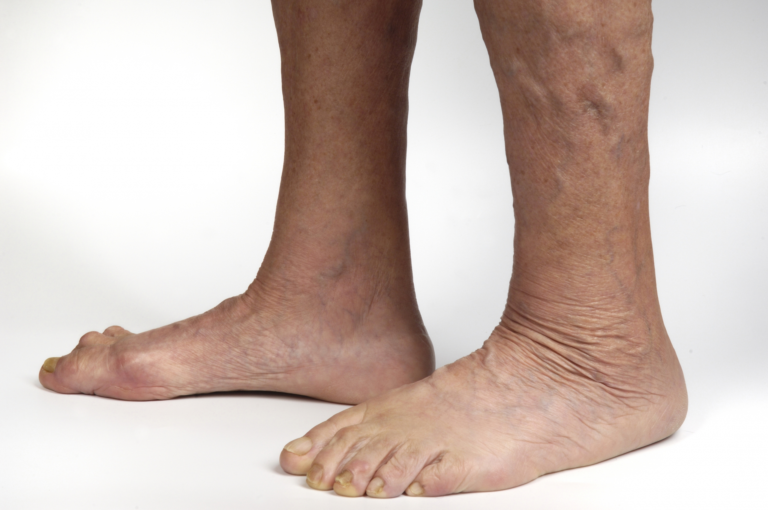 Ankles with varicose veins