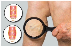 image magnifying glass on leg showing varicose vein along with diagram showing blood flow in normal and diseased vein