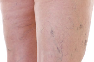photo of spider veins on back of thighs